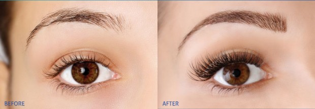 brow-perect-before-after-620x215.jpg