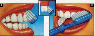 Yleiset hampaiden pesuohjeet | MediKemi Oy