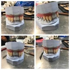 hammasmuotti