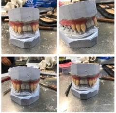 hampaiden valmistusprosessia