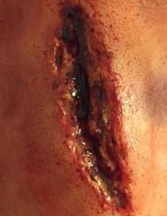 silikoni irtopalasta tehty haava